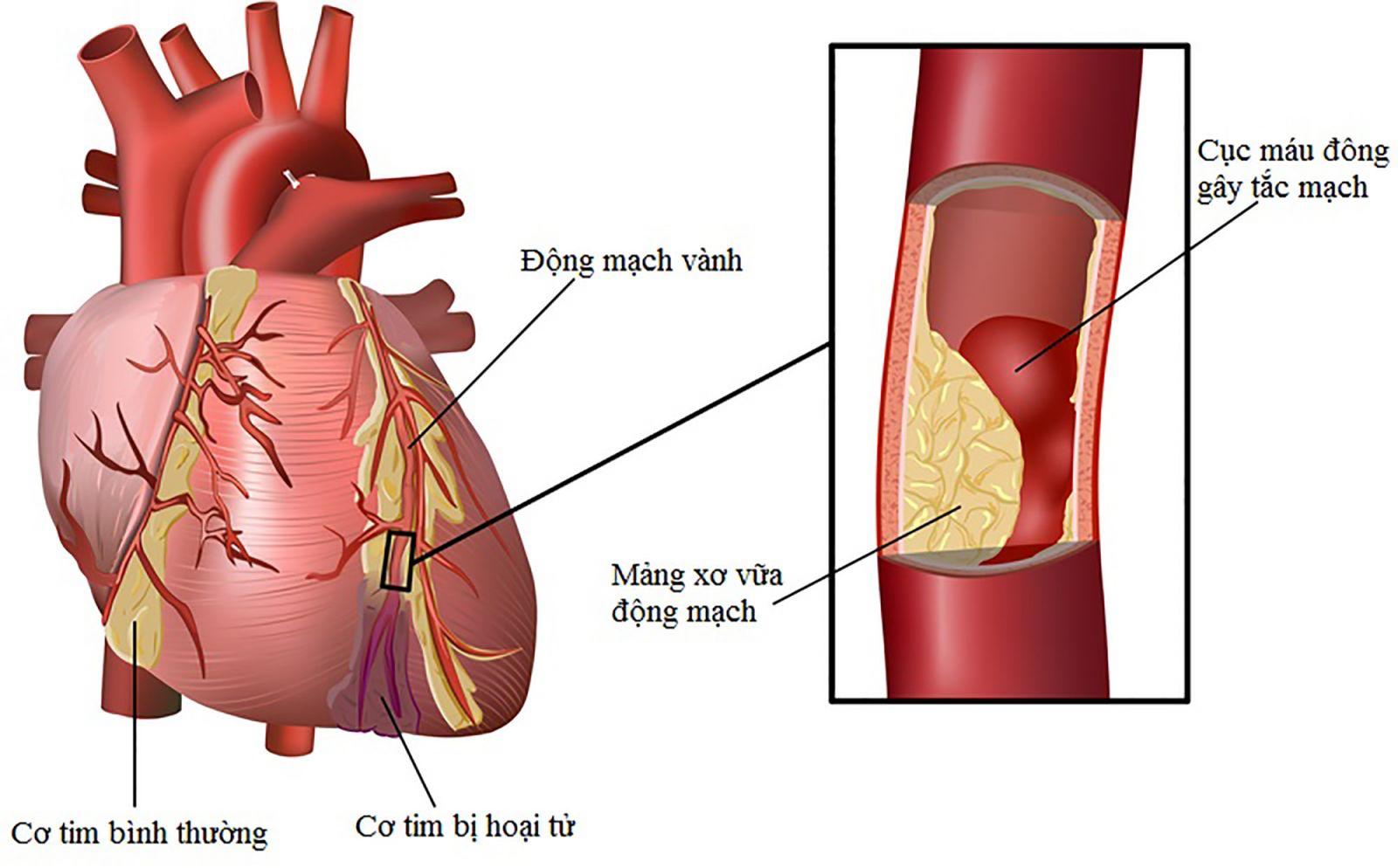 Rối loạn cương dương do xơ vữa động mạch 3