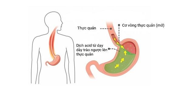 triệu chứng hay bị thức giấc ban đêm do bệnh trào ngược dạ dày